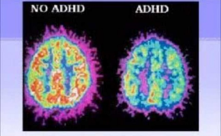 Adhd-Brain-Pictures-2
